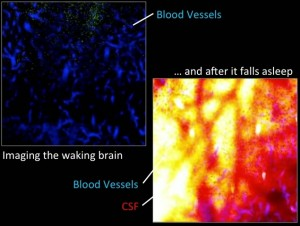 Comparison of the CSF flow of a sleeping and awake rat's brain